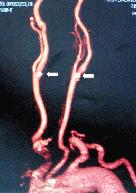 http://www.bibliomed.com.br/BancoImagens/Imagens/tmbangiotomografia-das-carotidas.jpg