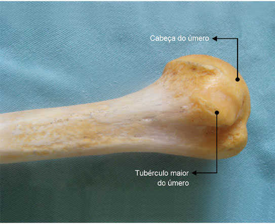 Cabeça: extremidade articular grande e arredondada