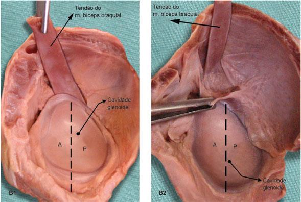 Em nove peças anatômicas, a inserção ocorreu exclusivamente no tubérculo supraglenoidal