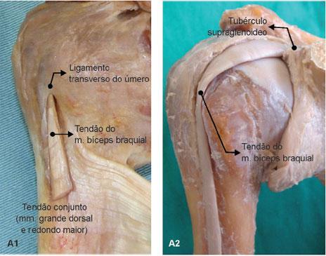 O ligamento transverso do úmero une os tubérculos maior e menor